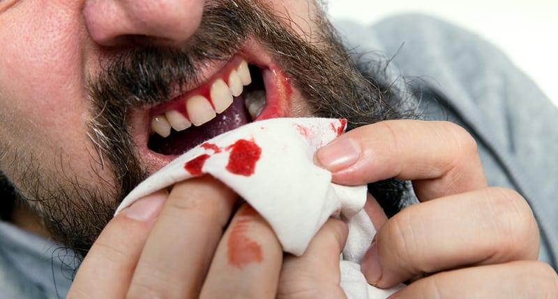 diş eti kanaması neden olur
