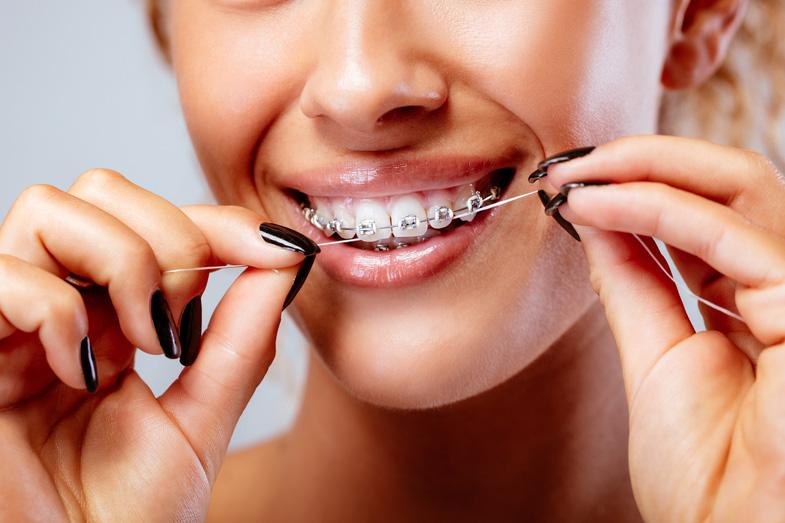 Diş Teli Varken Diş İpi Nasıl Kullanılır?