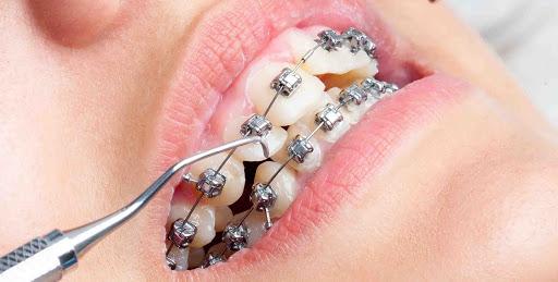 Metal Diş Teli Fiyatları