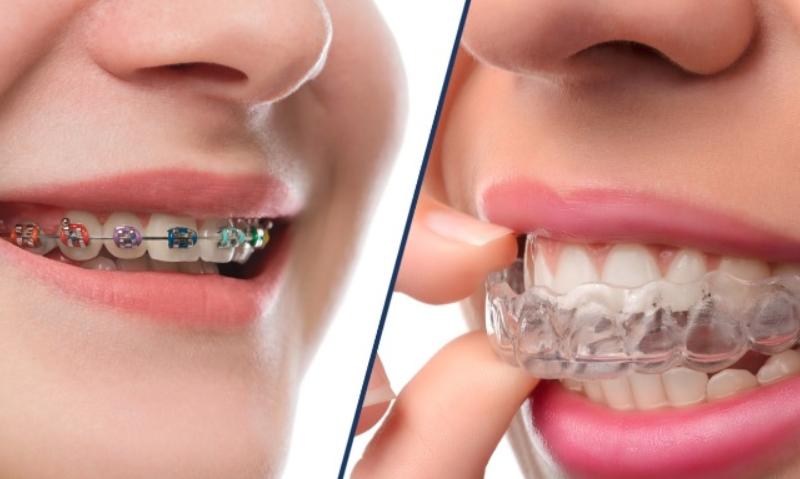 ortodonti fiyatlari