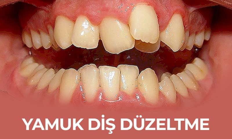 yamuk diş düzeltme