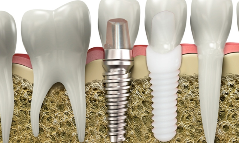 zirkonyum implant