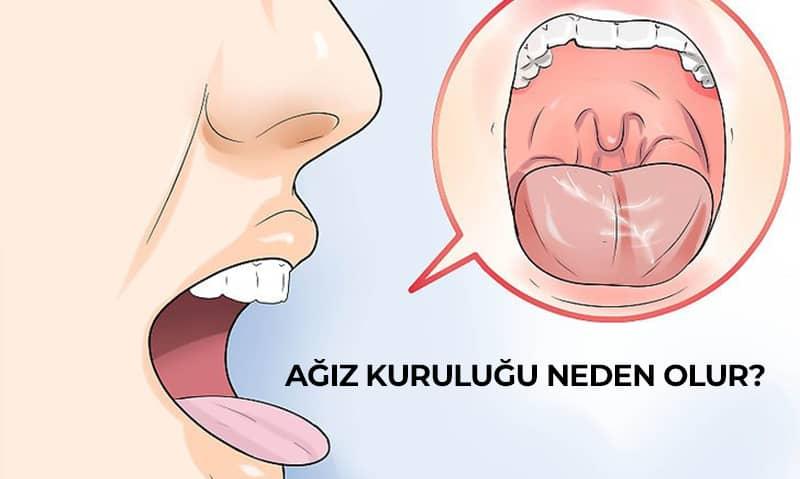 ağız kuruluğu neden olur