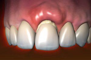 diş apsesi nedir