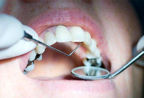 Diş Dolgusu Ne Kadar Sürer?