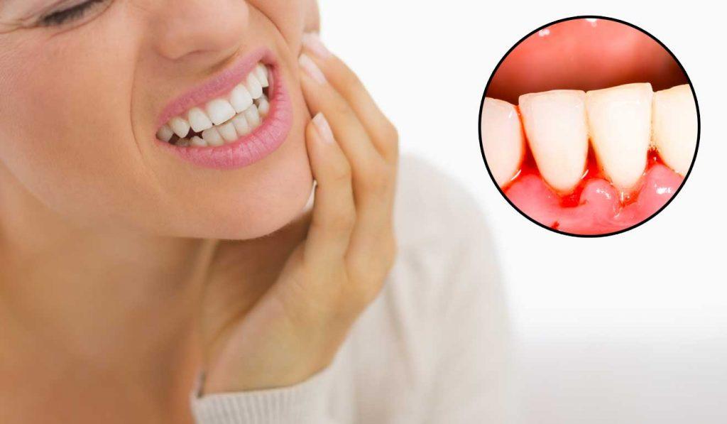 Diş Eti Kanaması Tedavisi