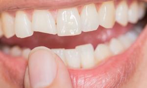 diş kırılması tedavisi