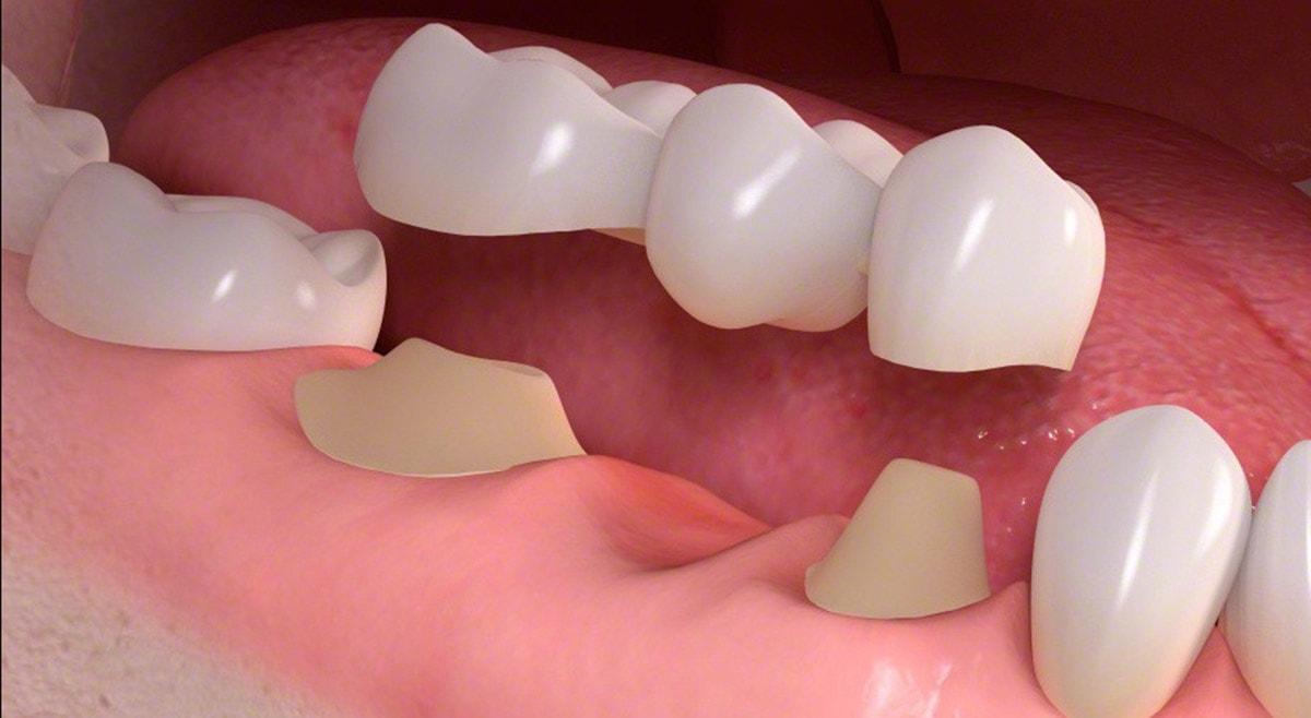 Diş Köprüsü Nedir?