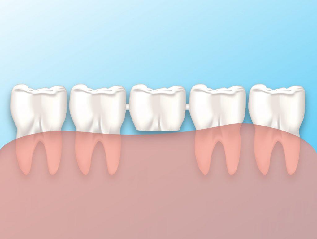 Köprü Diş Nasıl Yapılır?