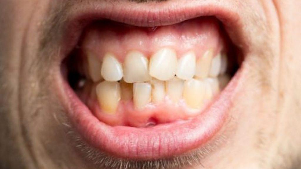 Çarpık Diş