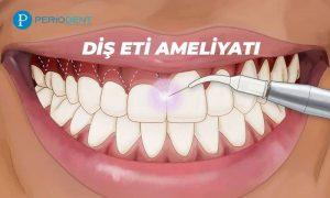 diş eti ameliyatı