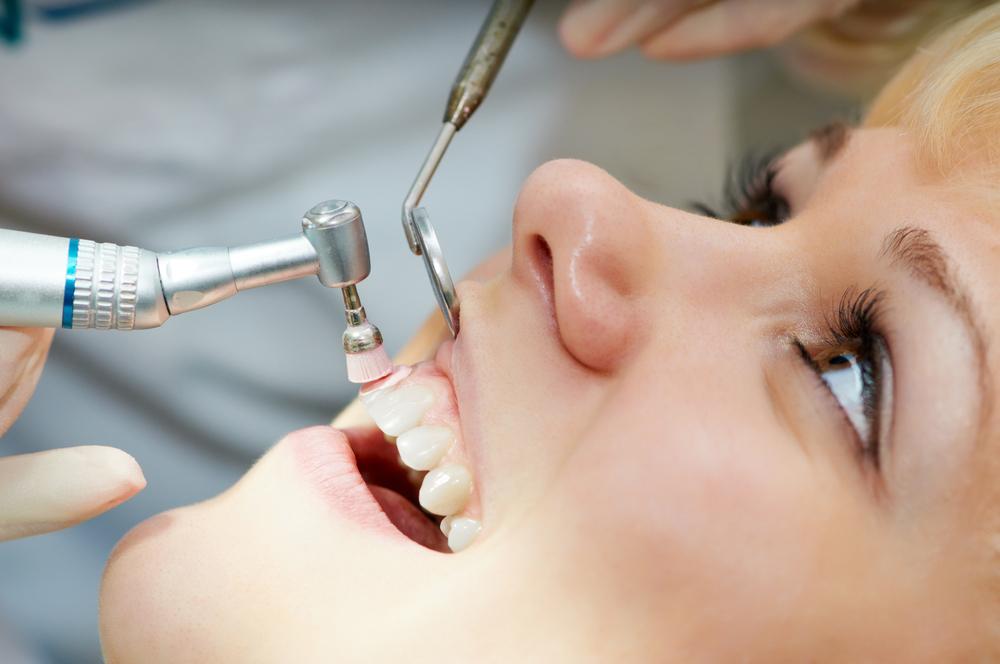 Diş Taşı Temizliği
