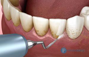 diş taşı temizleme sonrası