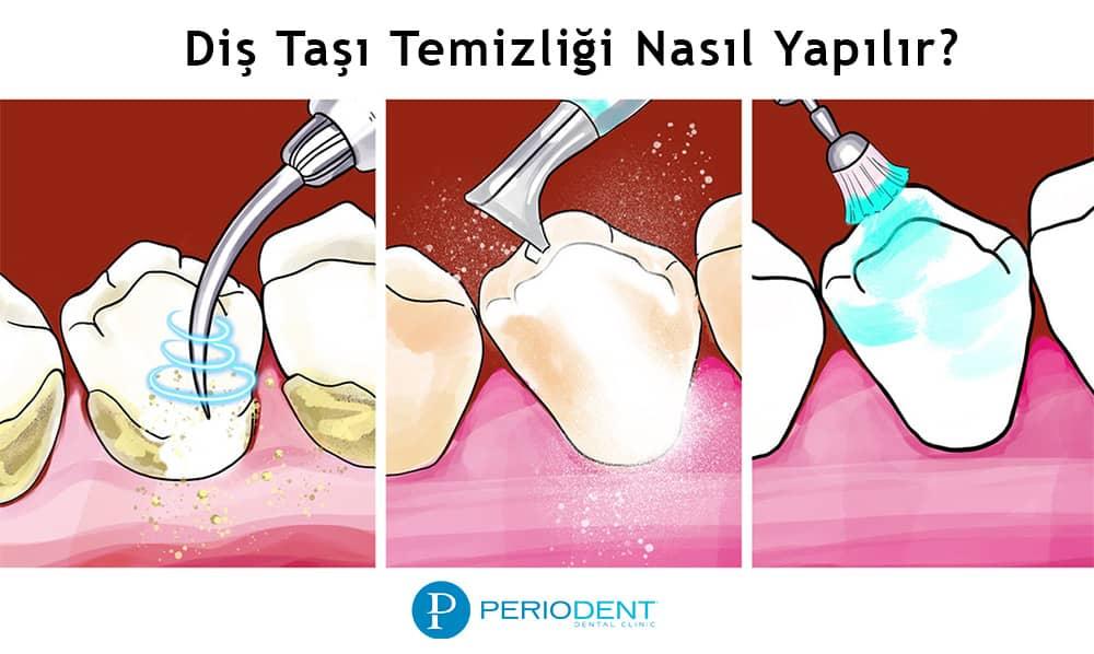 Diş taşı temizleme nasıl yapılır?