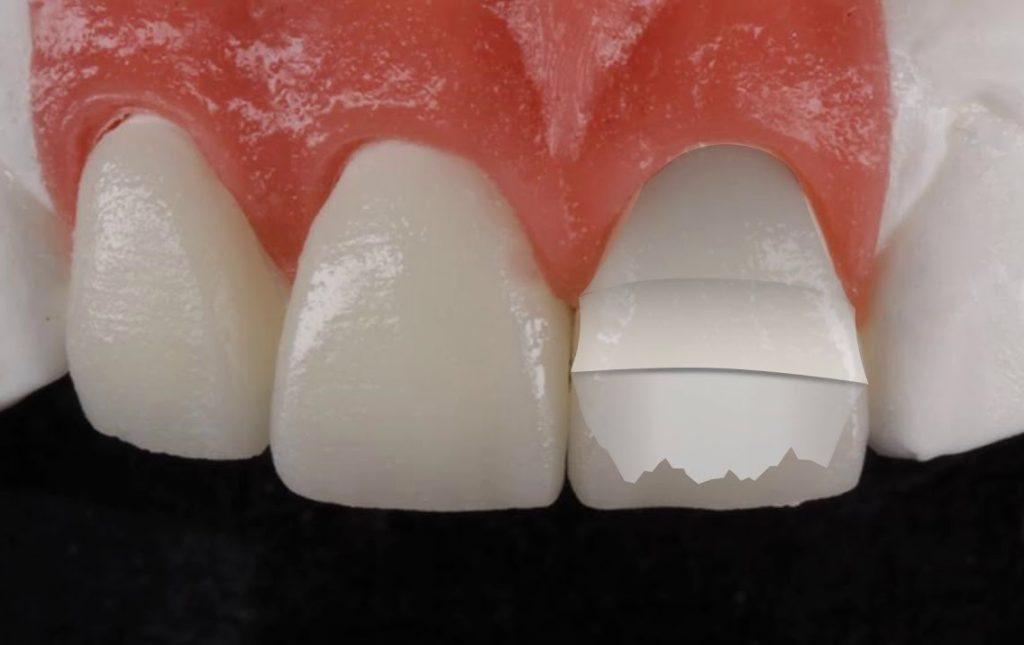 Emax diş fiyatları