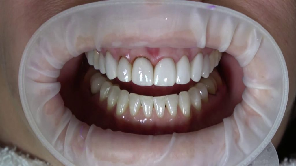 Emax diş