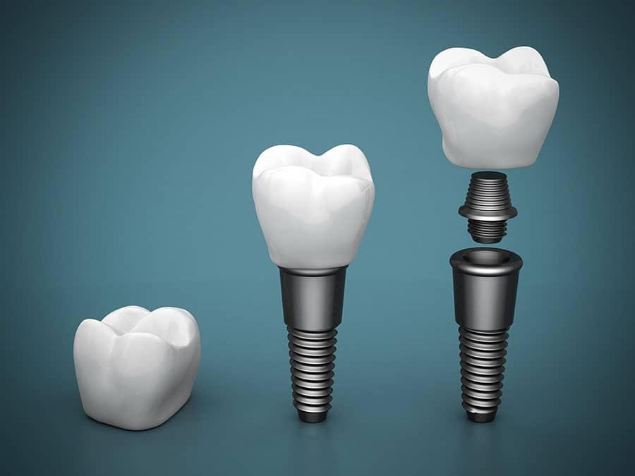 implant fiyatlari 2021
