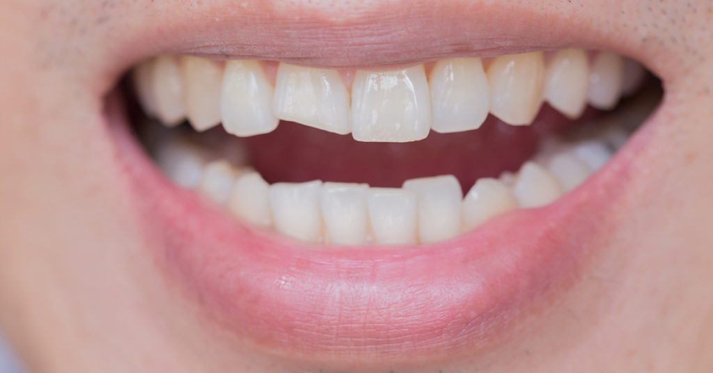Kırık Diş Tedavisi