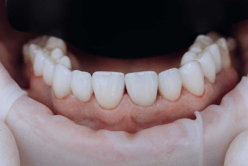 zirkonyum diş kaplama