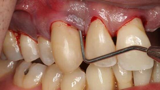 Diş eti morarması neden olur