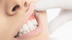 Diş Eti şişmesi neden olur