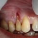 diş rezeksiyon