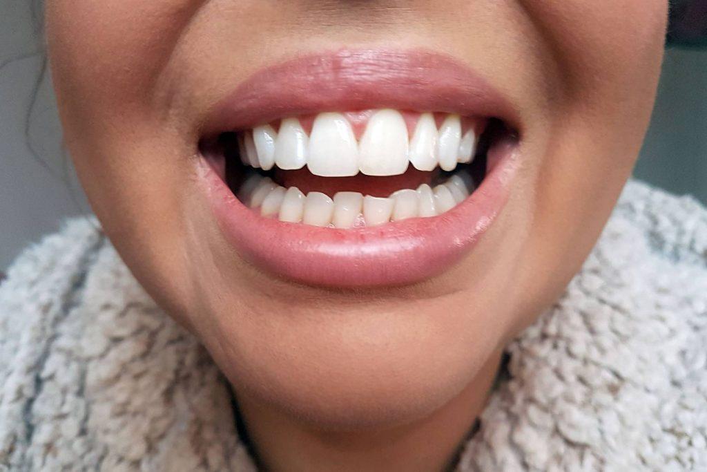 diş şekillendirme