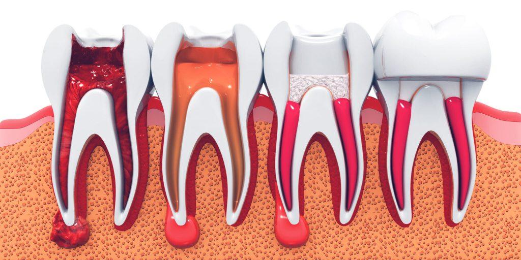 endodonti tedavisi