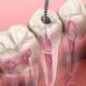 endodonti tedavisi nedir