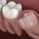 gömülü diş