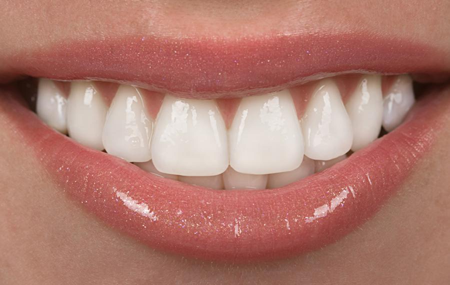 Gummy Smile fiyat