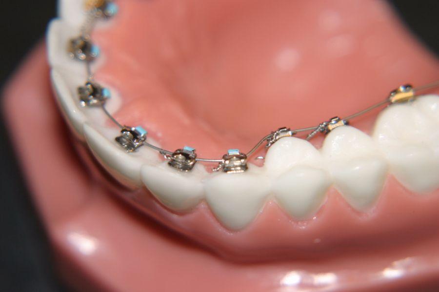 Lingual Ortodonti Nedir?