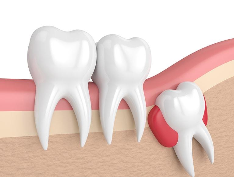 gömülü diş ameliyatı