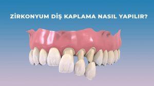 zirkonyum diş kaplama nasıl yapılır?