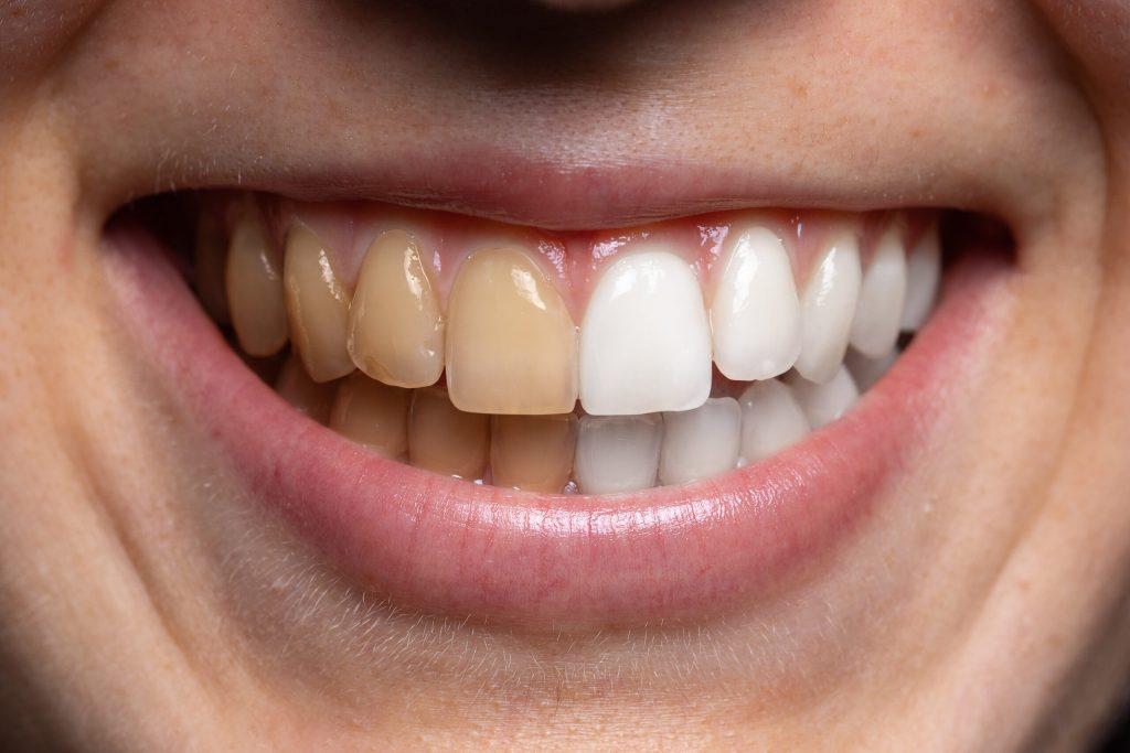 Diş Beyazlatma Güvenli Mi?