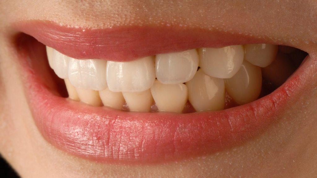 Diş Hassasiyeti Nasıl Geçer