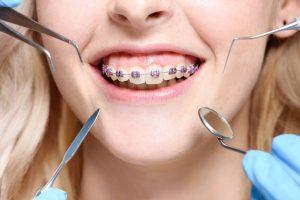 diş hekimi ve ortodontist arasındaki fark