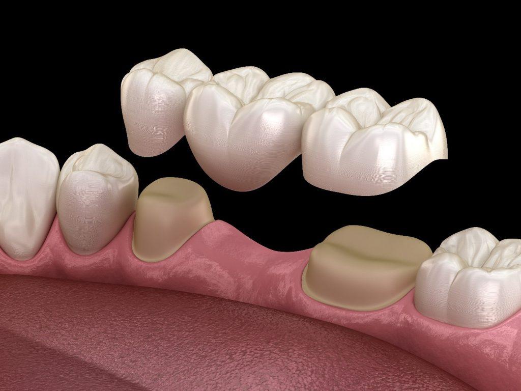 Diş Köprü Çeşitleri