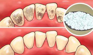 diş tartarı temizleme