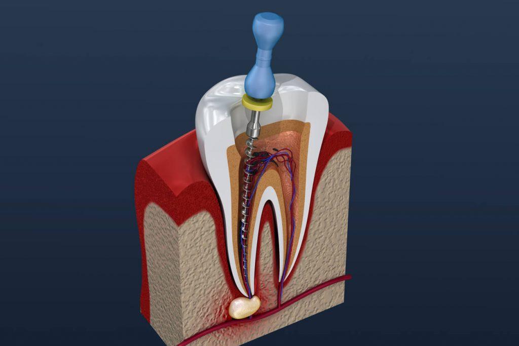 Endodontik Tedavi Nedir?
