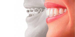 ortodontist ve diş hekimi arasındaki fark