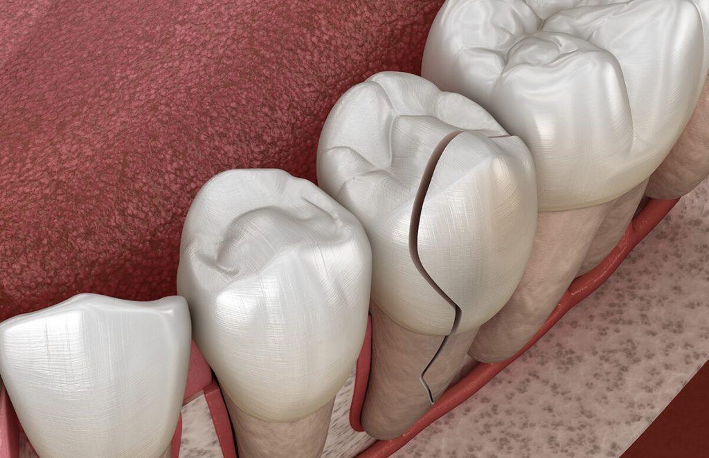 çatlak diş