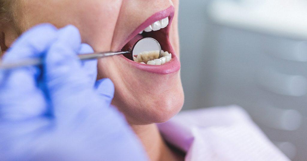 Diş Hassasiyeti Neden Oluşur?