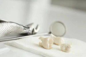 diş çekimi sonrası