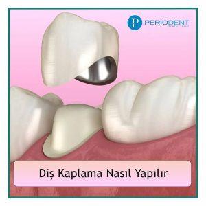 diş kaplama nasıl yapılır
