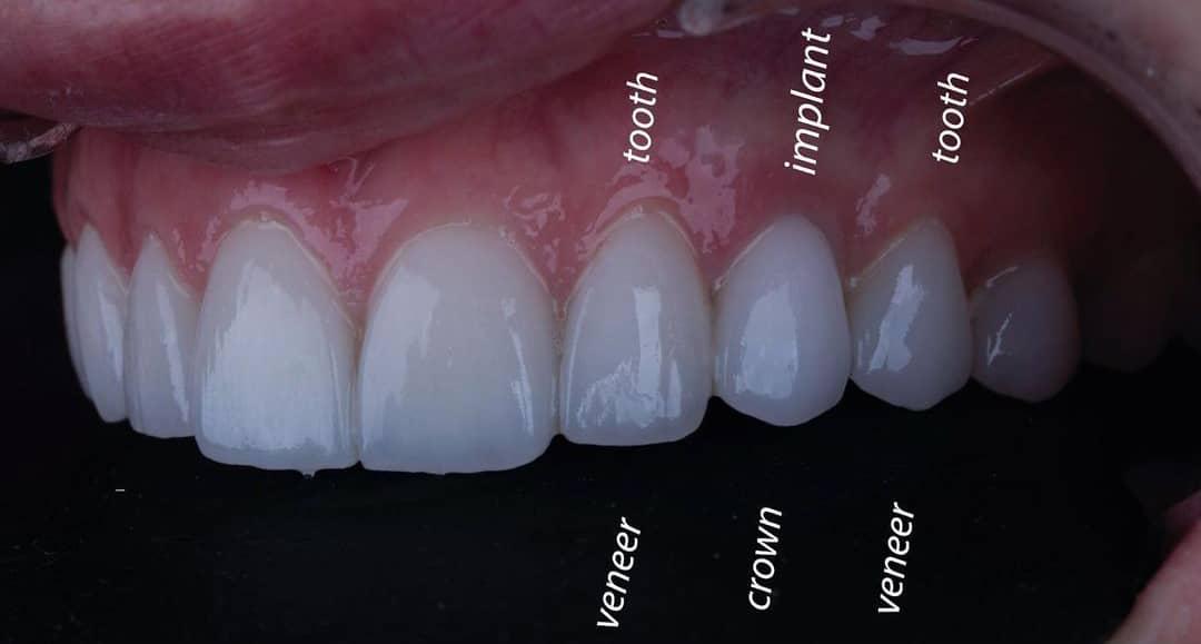 Get New Teeth Implants in Turkey