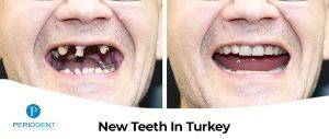 new teeths turkey