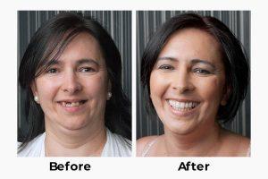 teeth implants in turkey