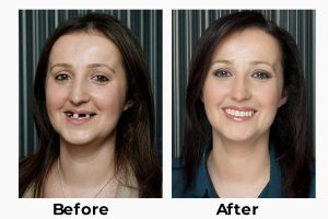 teeth implants turkey istanbul