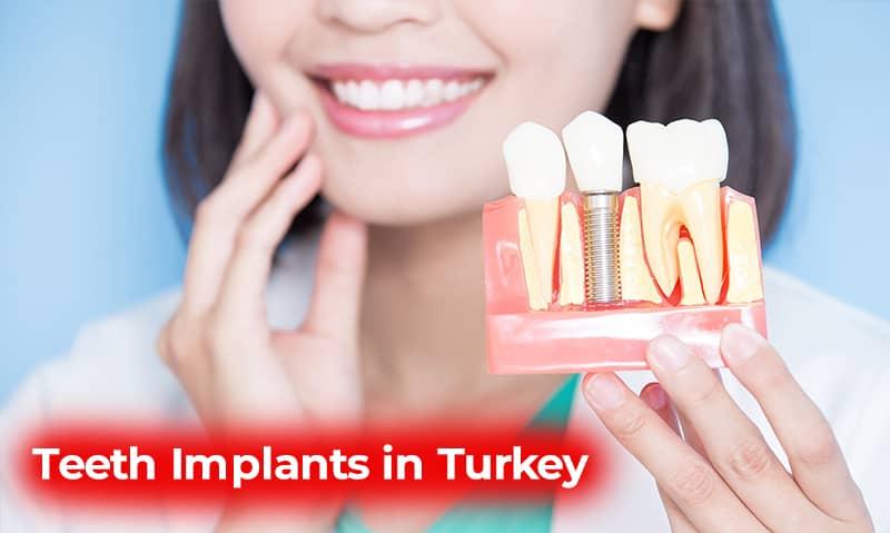 teeth implants turkey